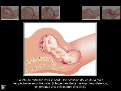 présentation bébé accouchement