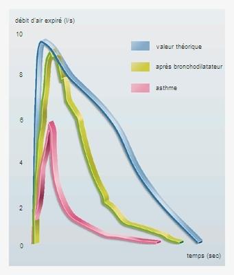 Encyclopédie Larousse en ligne - asthme