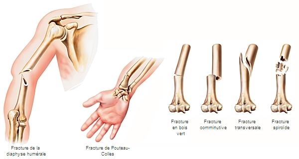 Encyclopédie Larousse en ligne  Types de fractures ~ Fracture Bois Vert Poignet