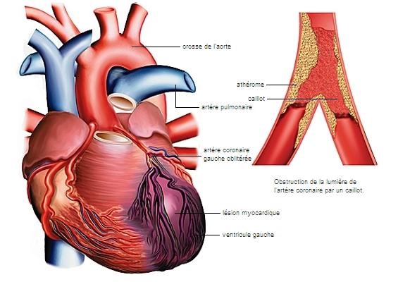 infarctus du myocarde. Infarctus du myocarde