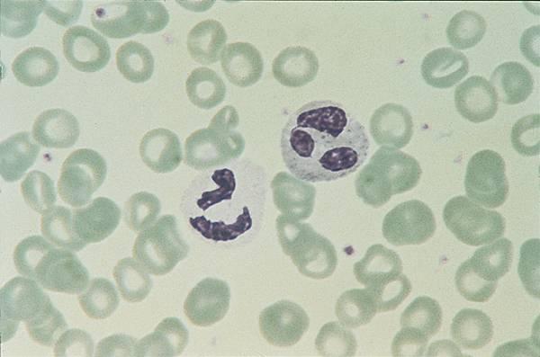 sang globule blanc