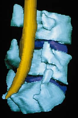 infection disque vertébral
