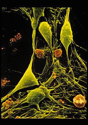 Le cerveaux for Influx nerveux