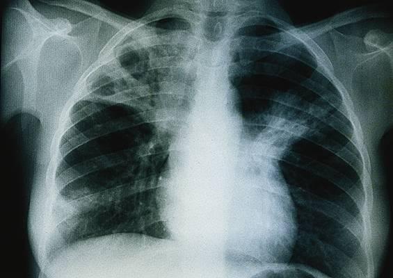 Encyclopédie Larousse en ligne - Tuberculose pulmonaire