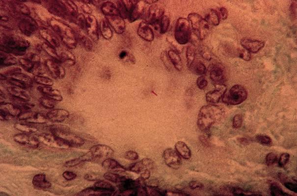 personne lymphatique définition