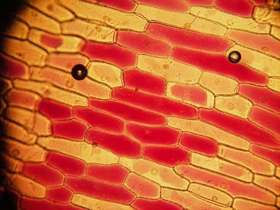 organisme avec vacuole