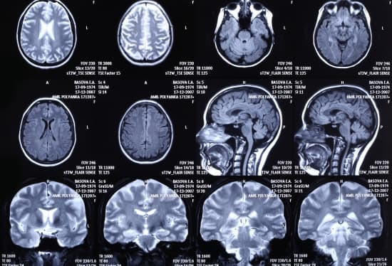 système nerveux cranien